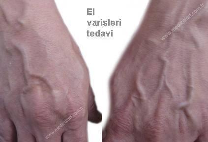 ellerde damar belirginleşmesi