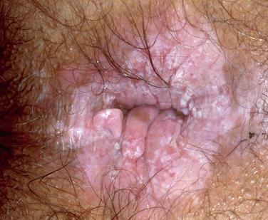 mayasıl hastalığı